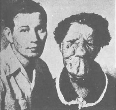 Grace McDaniels (1888-1958) was known as the 'Mule Faced Woman' due to a severe facial deformity known as Sturge-Weber syndrome.   She was known to her fellow circus workers as a kindly woman who loved to cook and sew.  She was raped by a drunken worker and gave birth to son Elmer, shown here.  Elmer was an alcoholic who stole from and mistreated his mother.  They both died in 1958.