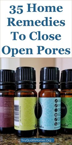 35 Home Remedies To Close Open & Large Pores For Smooth Skin: This Guide Shares Insights On The Following; Ayurvedic Medicine For Open Pores, How To Remove Small Pores From Face Naturally, Permanently Shrink Pores Laser, Best Way To Tighten Pores, Open Pores Treatment Products, How To Reduce Pores On Face By Home Remedy, How To Reduce Pores On Face Caused By Pimples, Reduce Pores On Face Products, Etc.