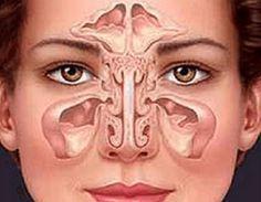 Die Nasennebenhöhlenentzündung: Entstehung, Symptome und Diagnose
