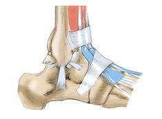 Réparation des ligaments de la cheville   http://monblog75.blogspot.fr/2012/08/infos-sante-sport-et-sante-reparation.html