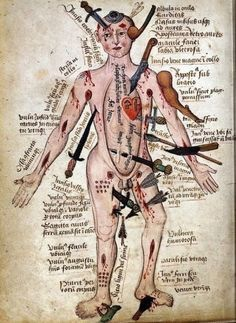 medieval wound chart