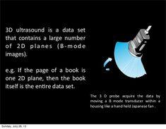 3d Ultrasound, Us Images, 3 D, Medicine, Hold On, Naruto Sad, Medical