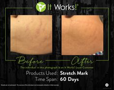 Stretch mark cream #livecleanwithgreens