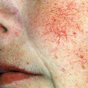 Reduce rosacea just before it begins by looking over this insightful guide. Excellent methods!