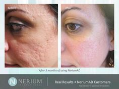 nerium ad scars | ... before and after pictures sent in from our Nerium AD customers. www.agnesmilan.nerium.com. Nerium AD is the real deal!!! 30 day money back guarantee. You have nothing to lose but wrinkles.