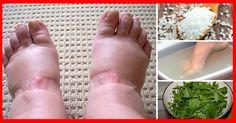 Mergulhe seus pés nessa mistura e acabe com o inchaço em poucos minutos.