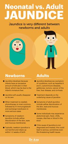 What Is Jaundice? Get the Facts on Neonatal vs. Ayurvedic Doctor, Nursing Tips, Bacterial Vaginosis, Dr Axe, Natural Treatments, Natural Remedies, Autoimmune Disease, Health And Wellbeing, Dna