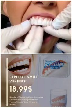 Top Oral Health Advice To Keep Your Teeth Healthy. The smile on your face is what people first notice about you, so caring for your teeth is very important. Unluckily, picking the best dental care tips migh Perfect Teeth, Perfect Smile, Smile Teeth, Teeth Care, Smile Smile, Snap On Smile, Veneers Teeth, Dental Veneers, Natural Teeth Whitening