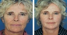 Anti-aging techniques by employing face exercises and facial massaging. Working the face with face yoga and acupressure techniques: Facial gymnastics workouts truly can make you look young Yoga Facial, Facial Hair, Face Lift Exercises, Facelift Without Surgery, Natural Face Lift, Natural Skin, Facial Rejuvenation, Burn Stomach Fat, Chemical Peel