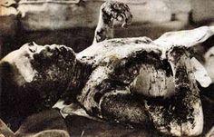 Victim of Hiroshima atomic bombing. Nuclear Energy, Nuclear Power, Nagasaki, History Facts, World History, Atomic Bomb Hiroshima, Hiroshima Bombing, Horrible Histories, Fotografia
