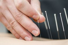 Acupuncture or dry needling acts by stimulating the nervous system using mechanisms of antidromic reflexes, neuromodulation, and other central effects.