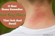 These are the 11 best home remedies for bug bites that itch and swell. Many you will already have on hand to start using right away. Click for more info.