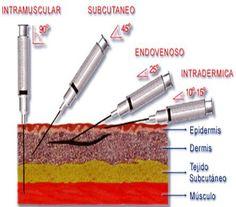 Forma de inyectar