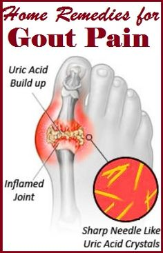 Home Remedies for Gout Pain