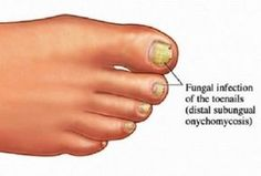 Are you embarrassed by unsightly, thick, yellowish-brown toenails? If so, your problem may be toenail fungus or onychomycosis. Affecting of Americans, toenail fungus is condition where a fungus called dermatophytes live underneath the nail and. Best Toenail Fungus Treatment, Toenail Fungus Home Remedies, Foot Fungus Treatment, Nail Treatment, Foot Remedies, Natural Remedies, Herbal Remedies, Diabetic Recipes, Natural Treatments