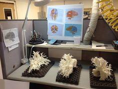 3ders.org - Stunning 3D printed White matter model reveals beauty of brain   3D Printer News & 3D Printing News