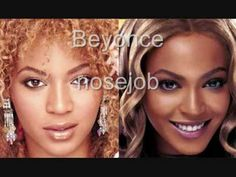 before Nose & Breast Imp. - - Beyonce before Nose & Breast Imp.--more-->Beyonce before Nose & Breast Imp. - - Beyonce before Nose & Breast Imp. Celebrities Then And Now, Beautiful Celebrities, Cheek Implants, Chin Implant, Color Del Pelo, Facial, Without Makeup, Makeup Looks, Deodorant