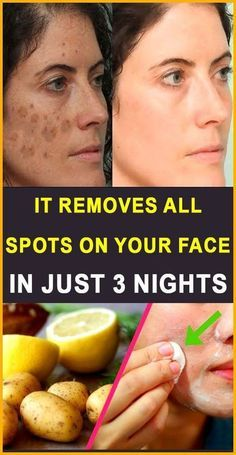 Acne scars are the most terrible spots on face. Basically, acne often leaves dark spots or scars that might prolong for several years. How long did you have a scar on your face? Home Remedies For Hair, Natural Home Remedies, Natural Beauty Tips, Natural Skin Care, Natural Health, Natural Oil, Natural Face, Beauty Care, Beauty Skin