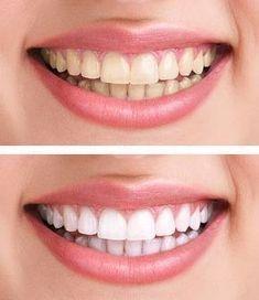 Hampaiden valkaisu kotikonstein: 10+ parasta ohjetta.