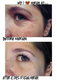 Wowzers!  This product works wonders.  It is for all ages.  Check out this product and extremely profitable business opportunity.  Visit me at wwww.wrinkleresults.nerium.com