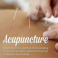 Acupuncture is an alternative medicine methodology originating in ancient China…                                                                                                                                                                                 More