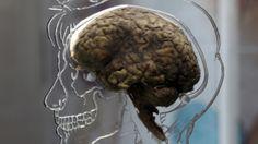 Quando surge o cérebro?
