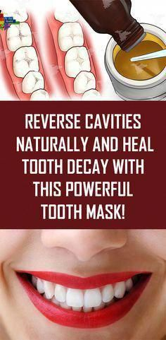 What Is Tooth Decay, What Causes Tooth Decay, Cure Tooth Decay, Heal Cavities, How To Prevent Cavities, Reverse Cavities, Remedies For Tooth Ache, Receding Gums, Best Oral