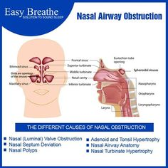 The Nasal Problem Begins with Post Nasal Drip http://goo.gl/AU4yt6