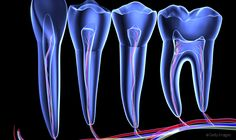 New research finds way to eliminate pain caused by tooth decay | Dental Products Report