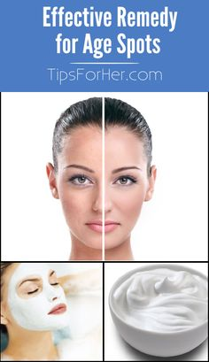 Effective Remedy for Age Spots - How to naturally and effectively fade and remove age spots, acne scars, blemishes and freckles