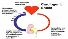 The Most Common Cause Of Cardiogenic Shock