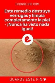 Moles, Warts and Skin Tags Removal Beauty Care, Beauty Hacks, Beauty Recipe, Natural Home Remedies, Natural Treatments, Natural Medicine, Healthy Tips, Skin Care Tips, Body Care