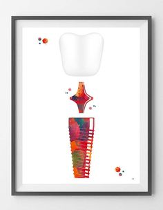 Molar Dental Implant watercolor print dental surgery anatomy