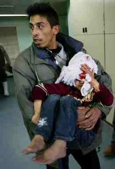 A Palestinian little child in a hospital after being wounded by Israeli occupation soldiers in Gaza yesterday.