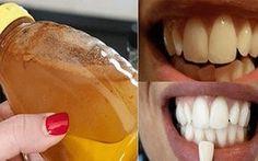 Los dentistas no quieren que esta receta salga a la luz. Pues es uno de los método más rápido y seguro para blanquear los dientes sin gasta...
