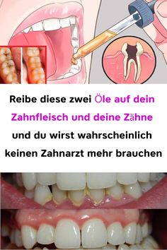 health remedies rub these two oils on your gums … - Hausmittel Herbal Remedies, Health Remedies, Natural Remedies, Health And Nutrition, Health And Wellness, Health Fitness, Natural Health Tips, Yoga Quotes, Health Articles