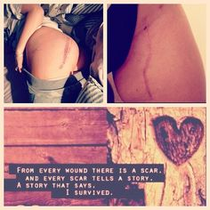 Skin cancer/ Melanoma/ Survivor