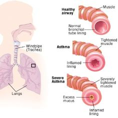 Top 14 Natural Remedies For Asthma