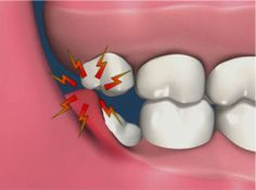 Know more about Wisdom Tooth Pain and 4 Stages of the Healing Process After Wisdom Tooth Extraction. Learn about how long does it take for wisdom teeth holes to heal and wisdom teeth recovery timeline. Dental Extraction, Tooth Extraction Aftercare, Tooth Extraction Healing, Teeth Surgery, Teeth Implants, Dental Implants, Dental Surgery, Wisdom Teeth Aftercare, After Wisdom Teeth Removal