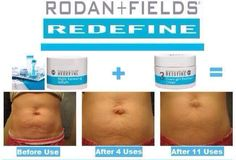 Have stretch marks after babies?  Rodan and Fields AMP Roller can help.