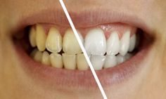 How to whiten teeth fast at home? ways to get white teeth. Home remedies to get rid of yellow teeth. Remedies for yellow teeth treatment Dental Health, Dental Care, Oral Health, Healthy Teeth, Healthy Life, Healthy Food, Healthy Eating, Teeth Whitening Remedies, Stained Teeth