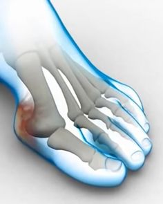 UN CAMINO NATURAL HACIA LA CORRECTA POSICIÓN DE TUS DEDOS DEL PIE. Foot Remedies, Health Remedies, Health And Beauty Tips, Health Tips, Get Rid Of Bunions, Wall Workout, Foot Exercises, Cool New Gadgets, Easy At Home Workouts