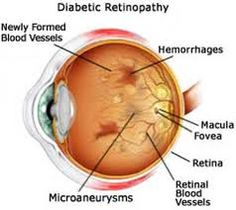 Retinopathy is a disease of the retina. The retina is the nerve layer that lines… Eye Facts, Diabetic Retinopathy, The Retina, Diabetes In Children, Healthy Eyes, Diabetes Awareness, Nursing Tips, Diabetes Management, Type 1 Diabetes