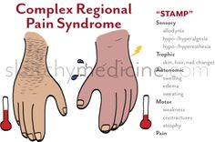 Complex Regional Pain Syndrome or CRPS, formerly known as RSD, is a real disease that causes excruciating pain, depression, anxiety and posttraumatic stress disorder. Fatigue Causes, Chronic Fatigue Syndrome, Chronic Illness, Chronic Pain, Muscle Atrophy, Complex Regional Pain Syndrome, Neuropathic Pain, Crps, Invisible Illness