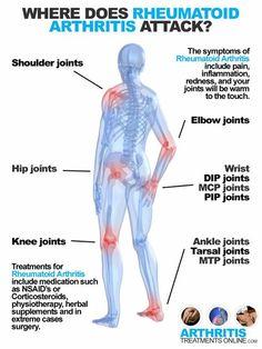 Where does Rheumatoid Arthritis attack?
