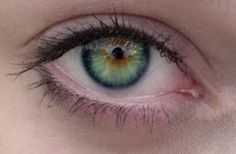 Central Heterochromia. Different colors around the Iris than the rest of the eye