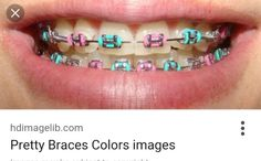 Really pretty blue and pink braces:)