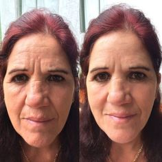 Apologise, free facial excercises idea