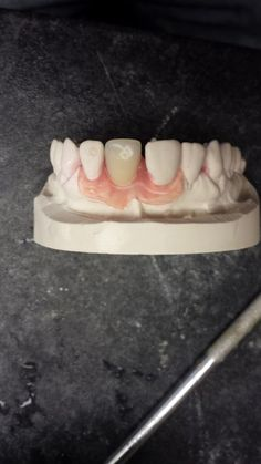 HQ dental, Swallow House, 349 Tong Rd, Leeds LS12 4QG 0113 279 6668 www.hqdental.co.uk Valplast® flexible partials   Valplast® flexible partials could be the solution for you to replace one or more teeth. Unlike more traditional ridged, bulky and unstable dental materials Valplast flexible partial denture are made from a flexible plastic material which fits neatly into your mouth and is virtually invisible. They do NOT require any unsightly metal clasps to keep them in place.