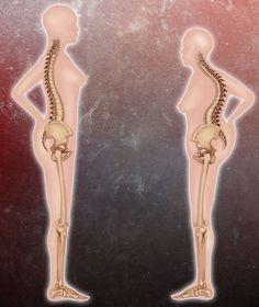 OSTEOPOROSE - VORBEUGEN, ERKENNEN, BEHANDELN Das beste für Ihre Knochen